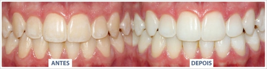 clareamento-dental-caseiro-2